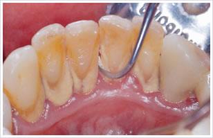 歯のスケーリング(軽度歯周病の方対象)