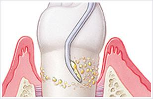 歯のルートプレーニング(中等度歯周病の方対象)